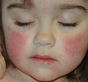 enfermedad-del-bofeton-o-megaloeritema-L-lZMIwe